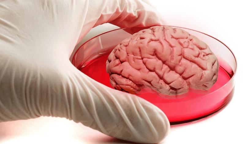 mini-beyin